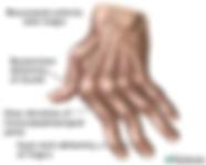 arthritis hand.png