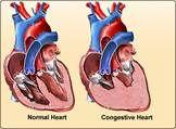 congestive heart.jpg
