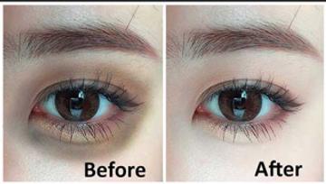 How to get rid of Dark Circles & eye bags around eyes