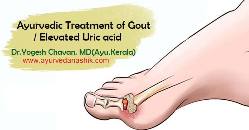 Ayurvedic treatment of gout/ elevated uric acid in Nashik