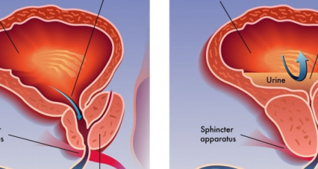 Benign Prostatic Hypertrophy (Enlarged Prostate) Ayurvedic View