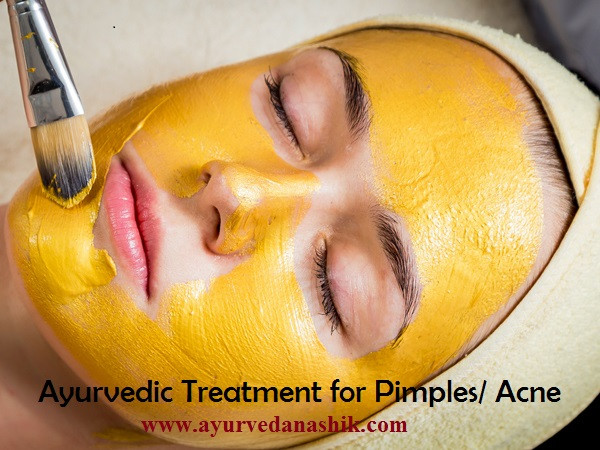 Ayurvedic treatment for Pimples/ Acne in Nashik