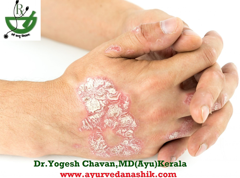 Ayurvedic treatment of Psoriasis by Dr.Yogesh Chavan Nashik ayurvedic skin specialist in nashik