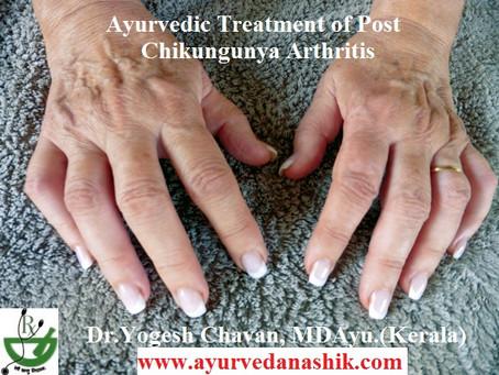 Chikungunya Arthritis: Ayurvedic Treatment is Best