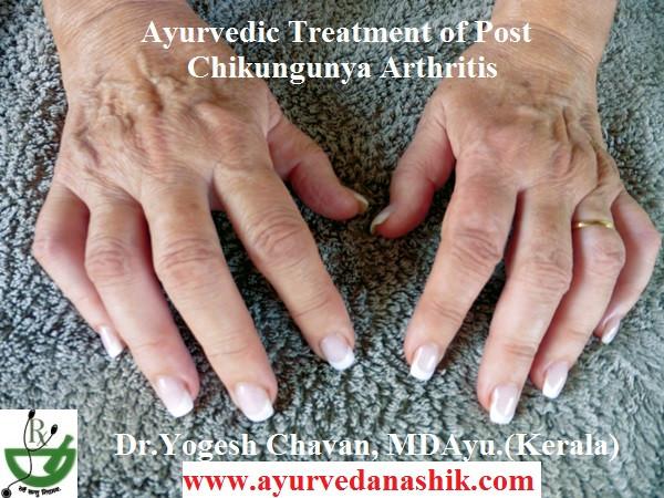 Ayurvedic treatment of Chikungunya Arthritis