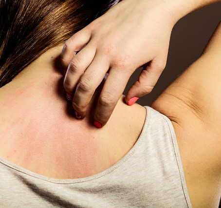 Ayurveda home remedies for Urticaria/Hives (Sheetapitta)
