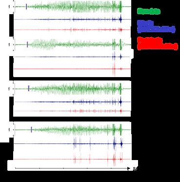 EEG recordings.png