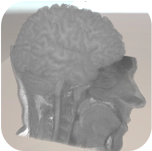 brain scan pic.png