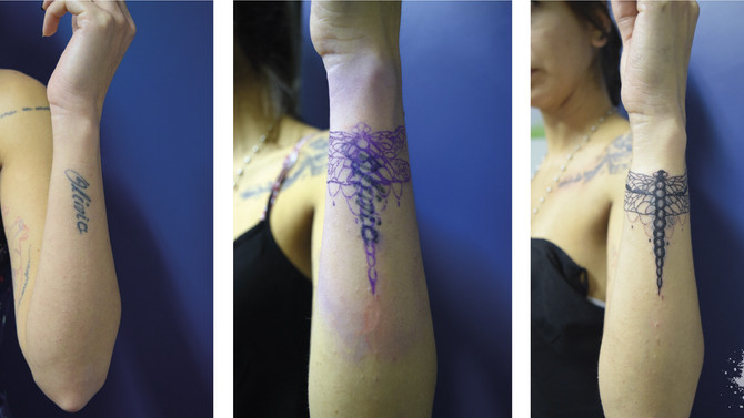 Me arrependi da tattoo! E agora?