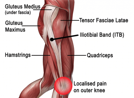 Running Injuries - IT Band Syndrome