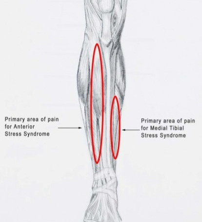 Running Injuries (Part 4) - Shin Splints and Stress Fractures