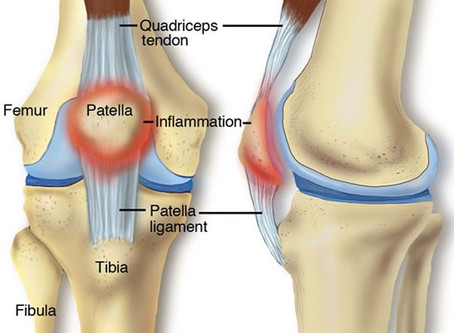 Running Injuries (Part 3) - Runner's Knee, Patellar Tendonitis, and Muscle Strains