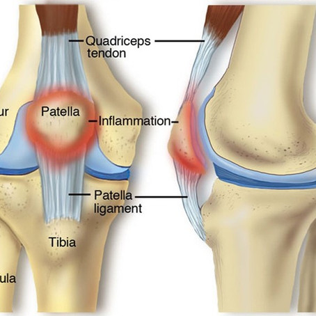 Running Injuries (Part 3) - Runner's Knee, Patellar Tendonitis, and Muscle Strains