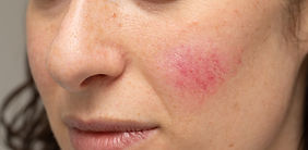 Woman with blotchiness on the cheek caus