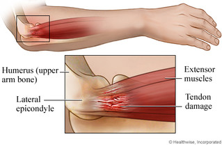 Condition of the Month:  Tennis Elbow (Lateral Epicondylitis)