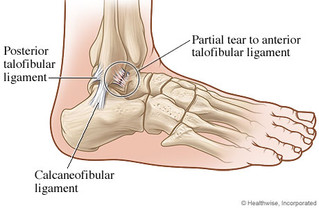 Condition of the Month:  Ankle Sprain