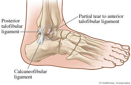 ankle sprain minnie tang physio