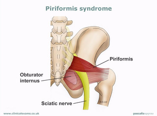 Condition of the Month:  Piriformis Syndrome