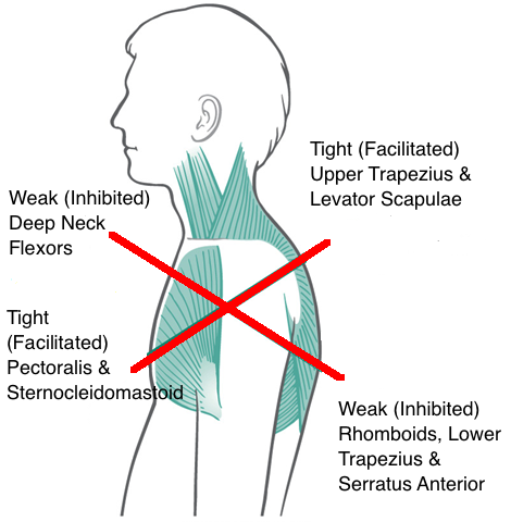 posture upper crossed syndrome minnie tang physio