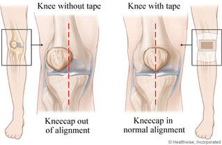 Condition of the Month:  Runner's Knee (Patellofemoral Pain Syndrome)