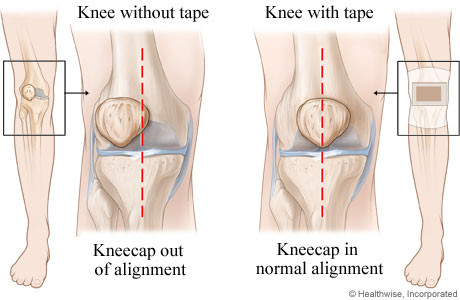 runner's knee patellofemoral pain syndrome minnie tang physio