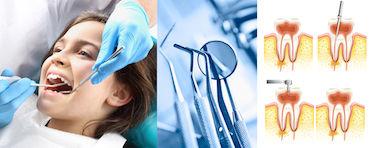 Dential - endodonzia in Albania