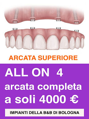 Arcato Superiore All on 4