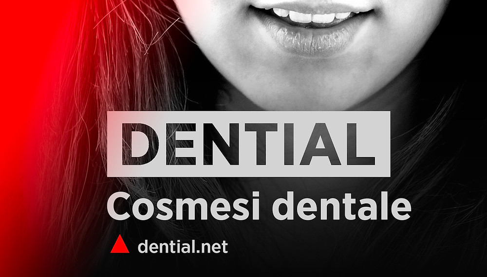 Faccette dentali e ricostruzioni estetiche