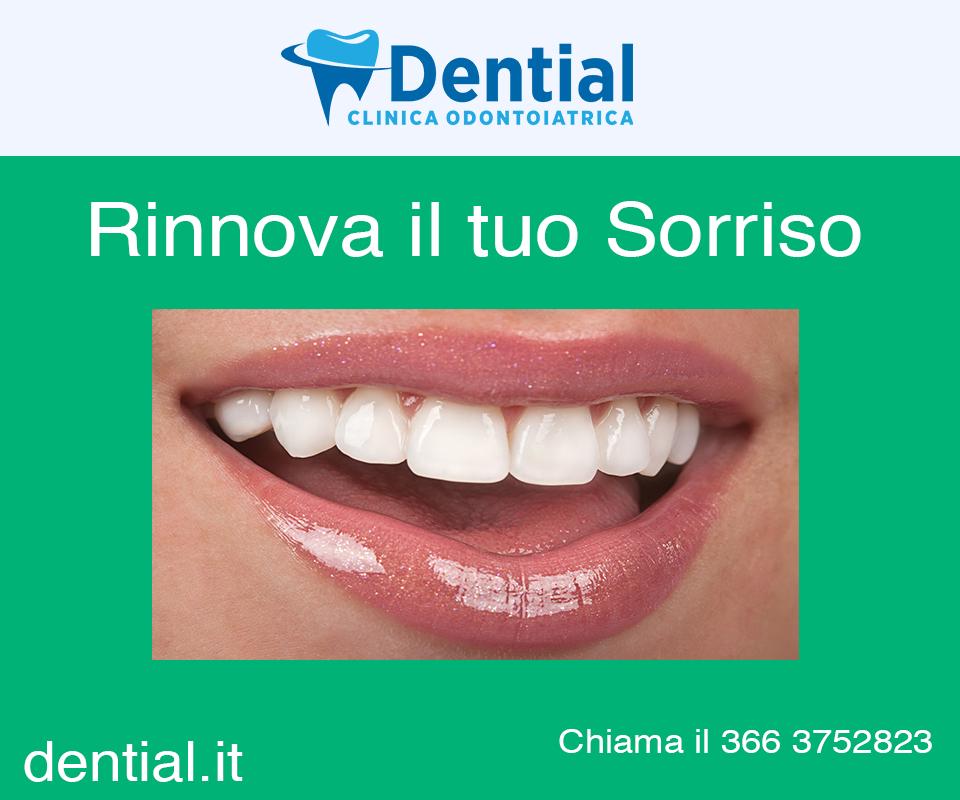 """""""dentista a Durazzo"""""""