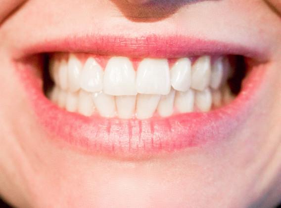 sbiancamento dente