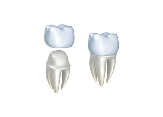 corone-dentali-estetiche.jpg