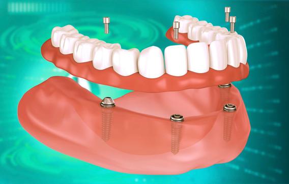 dentale-all-on-4.jpg