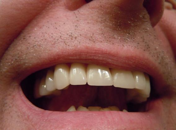 Cosmesi e pulizia dentale