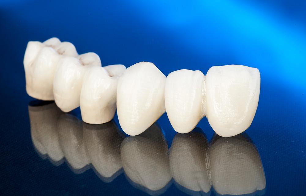 Nella nostra clinica, le corone vengono applicate al paziente dando la possibilità di scegliere le più economiche in metallo ceramica oppure quelle più costose in Zirconio Zahn