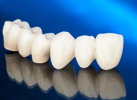 Corone dentali in zirconio o ceramica