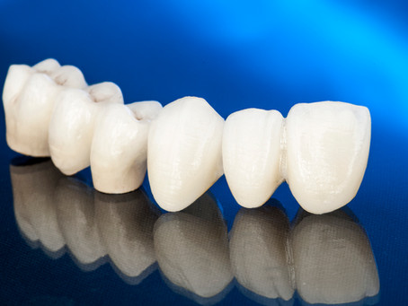 Corone dentali in zirconio o ceramica
