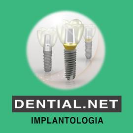 Impianti dentali italiani e tedeschi