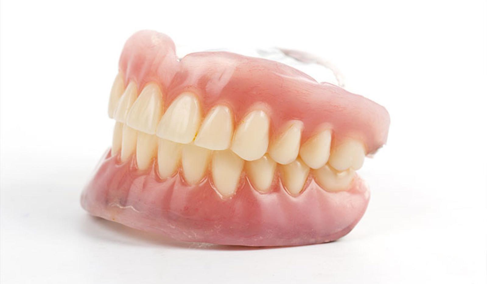 protesi-dentali-mobili-3.jpg