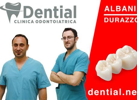 Perché scegliere una clinica dentale in Albania