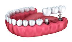dental treatment in Albania