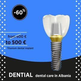 Impianti dentali OSSTEM Germany