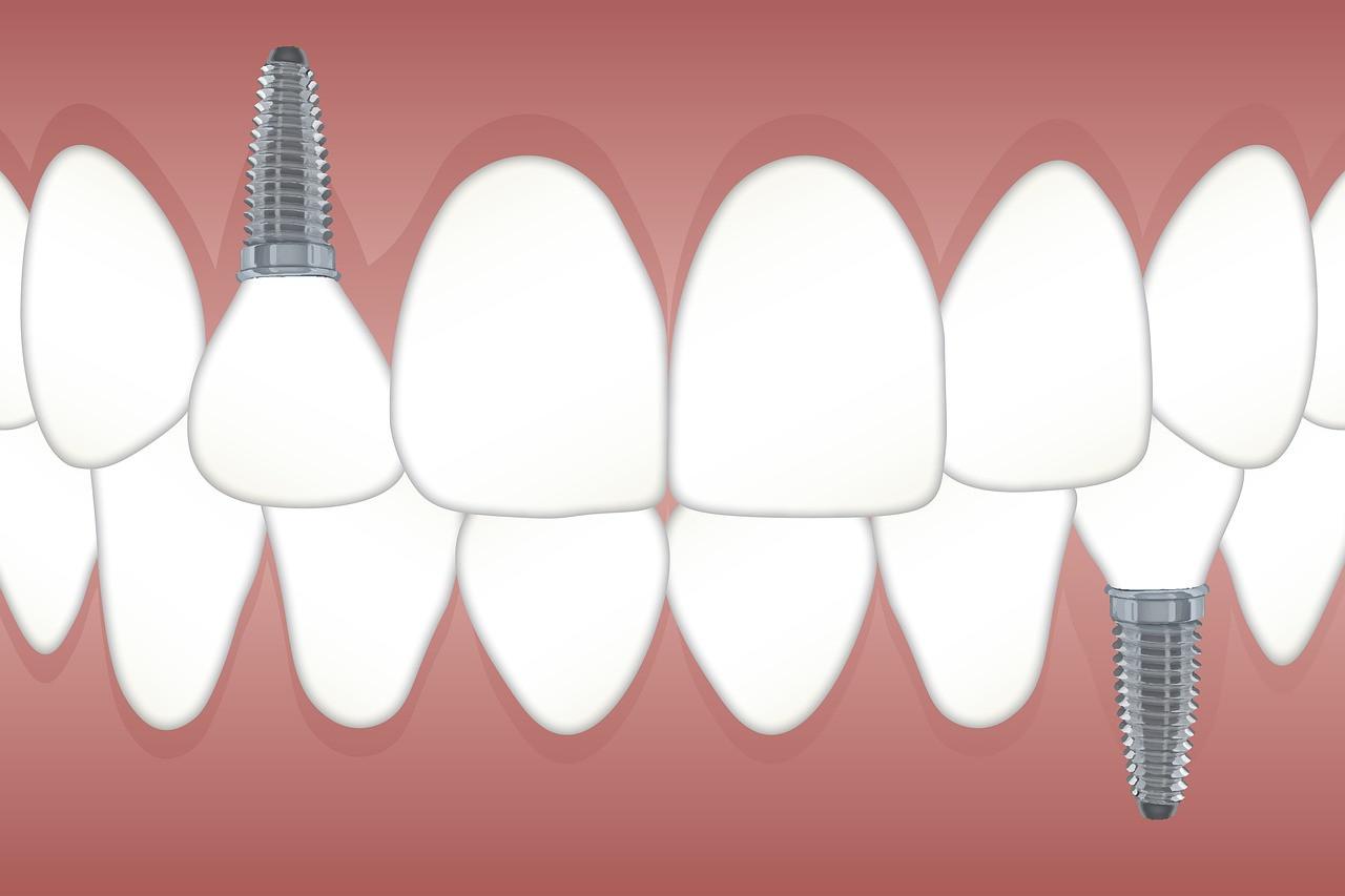 albania-clinica-dentale.jpg