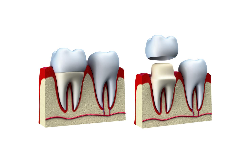 corone-denti.jpg