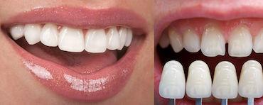 Dential - dentista in Albania