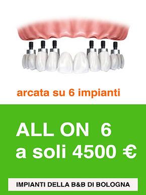 arcata-dentale-all-on-6.jpg