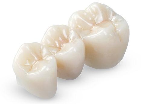 Corone dentali in zirconio