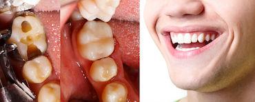 otturazioni e sbiancamento dentale
