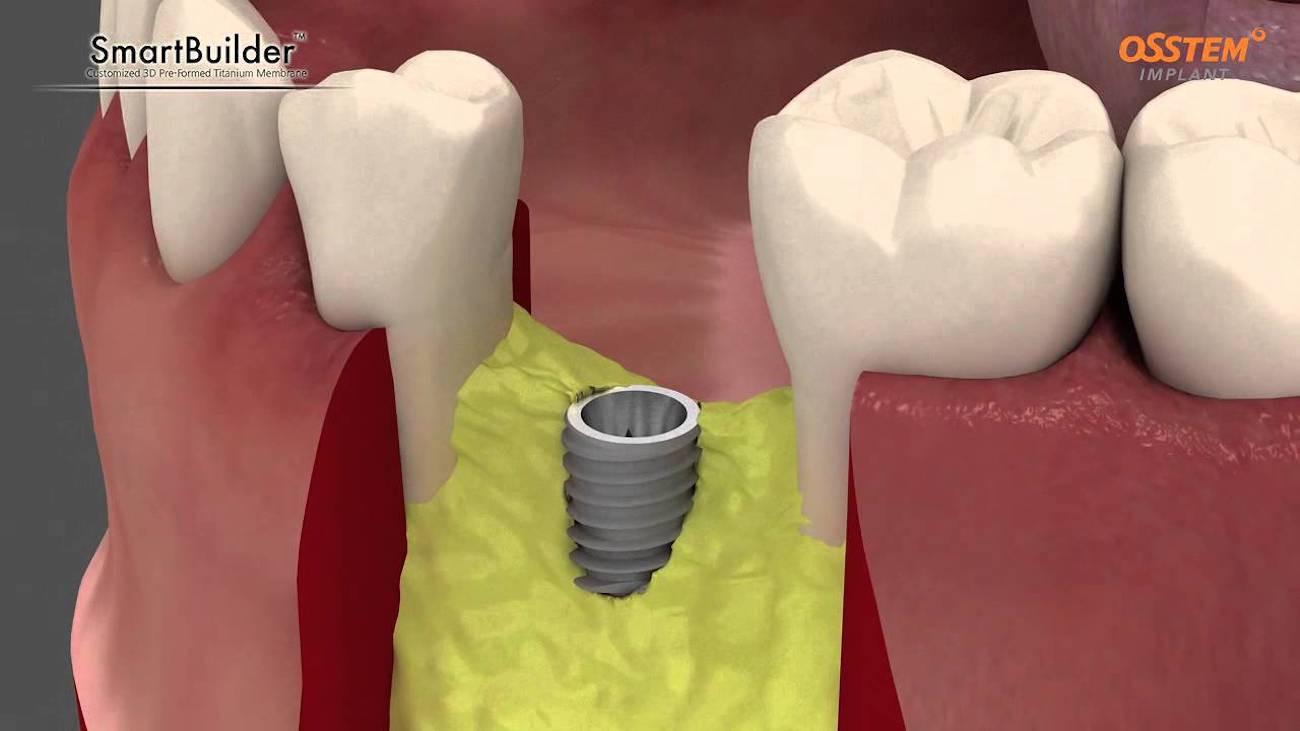 impianti-dentali-titanio-4.jpg