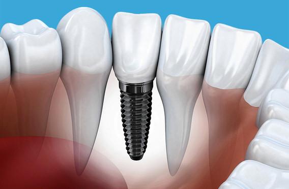 Cure dentali in Albania