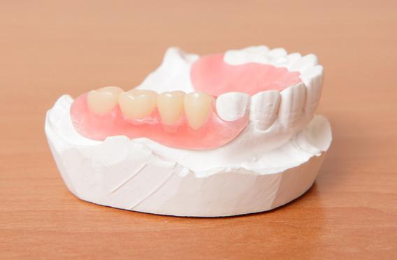 protesi-dentali-mobili-1.jpg